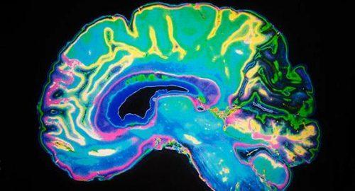 Psicoterapia e plasticità cerebrale